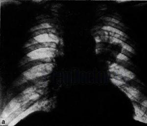 Рак легких на рентгенограмме