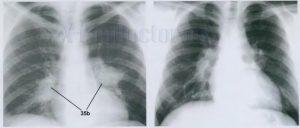 Метастазы в легких на рентгене