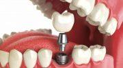 Зубные импланты: плюсы и минусы